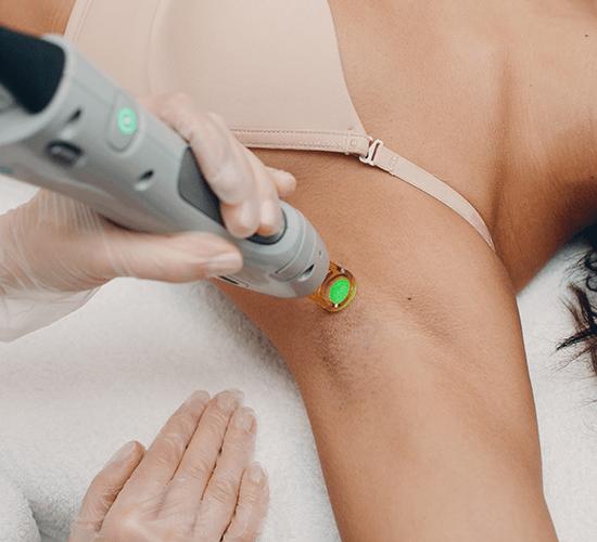 dauerhafte-haarentfernung-laser-intim
