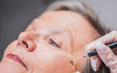 Faltenbehandlung: Mit dem Laser gegen das Altern